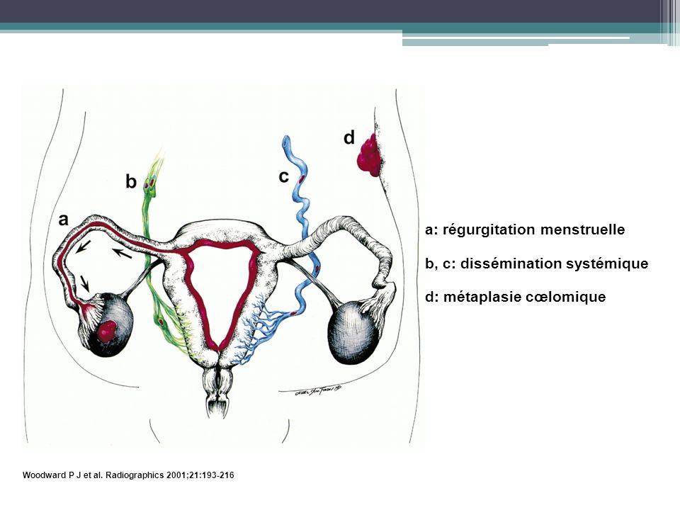 a: régurgitation menstruelle b, c: dissémination systémique