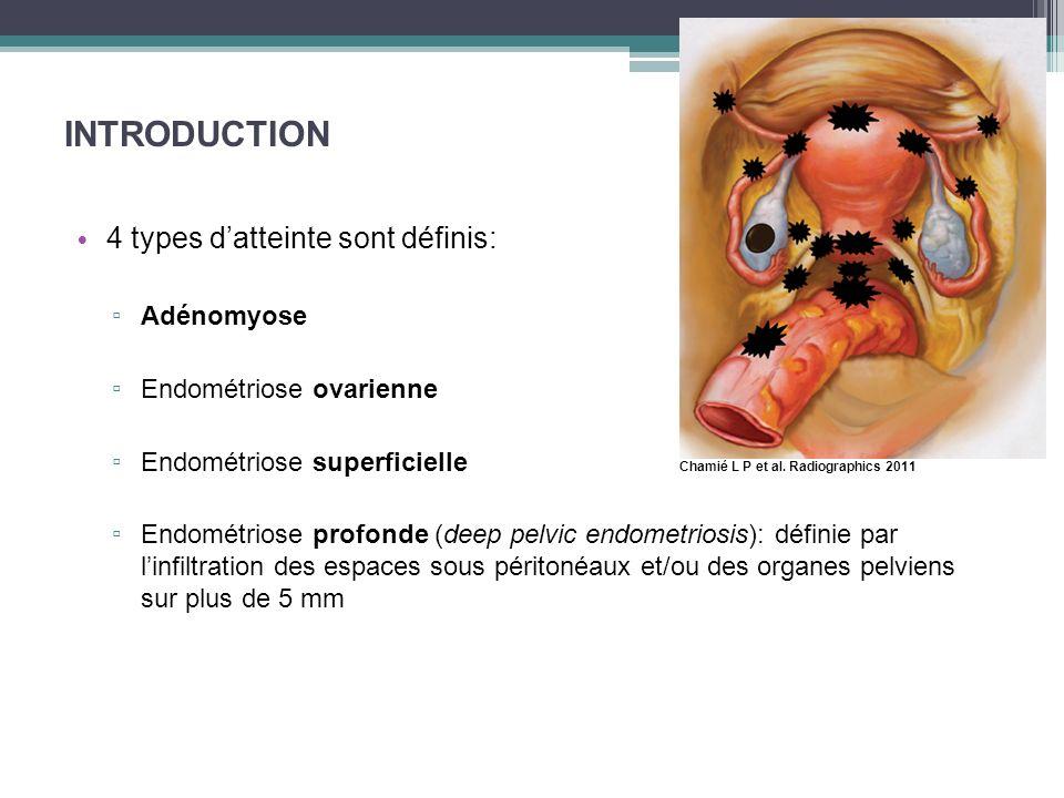 INTRODUCTION 4 types d'atteinte sont définis: Adénomyose