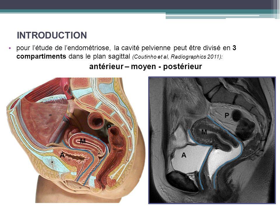 INTRODUCTION antérieur – moyen - postérieur