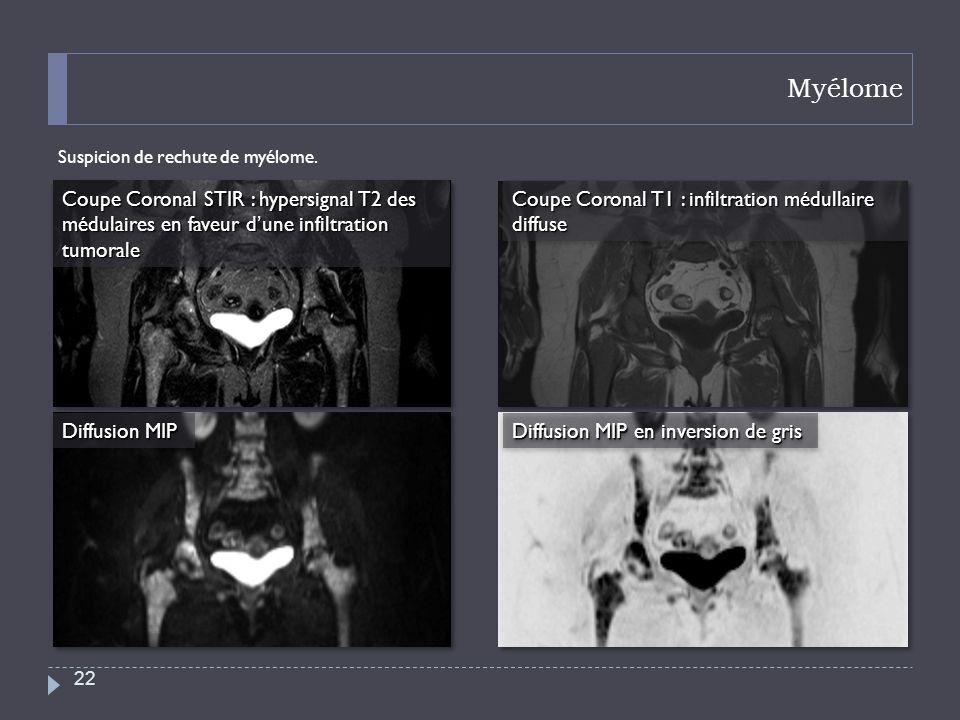 MyélomeSuspicion de rechute de myélome. Coupe Coronal STIR : hypersignal T2 des médulaires en faveur d'une infiltration tumorale.
