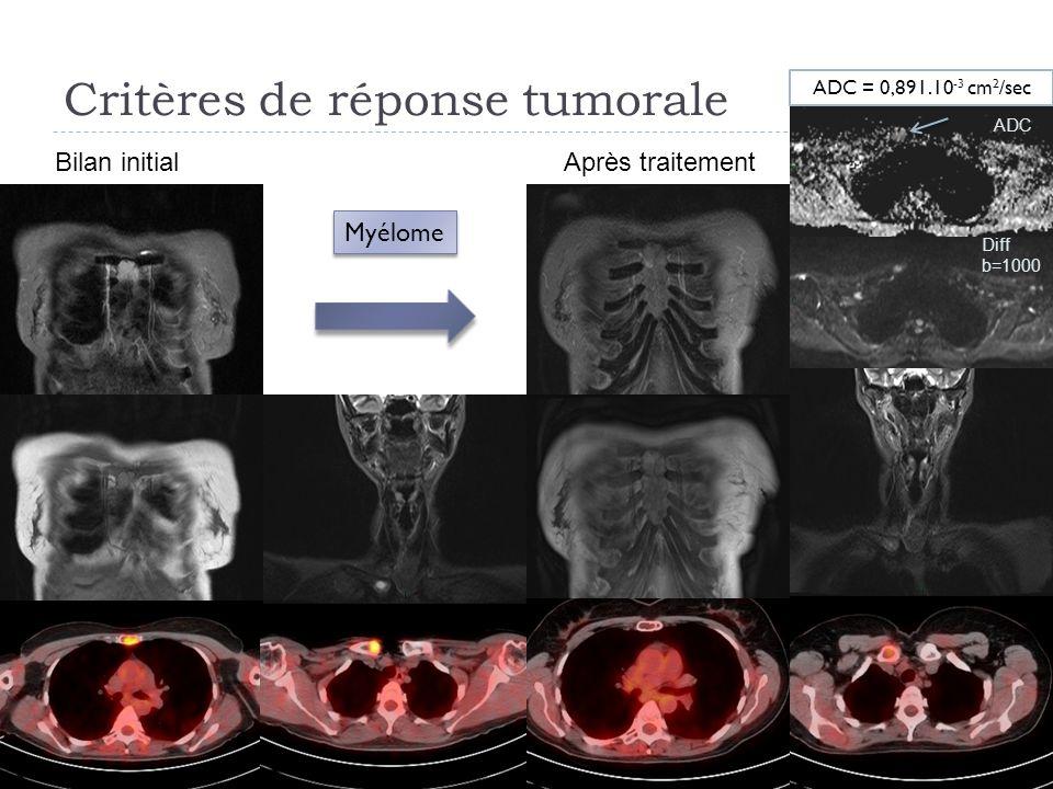 Critères de réponse tumorale