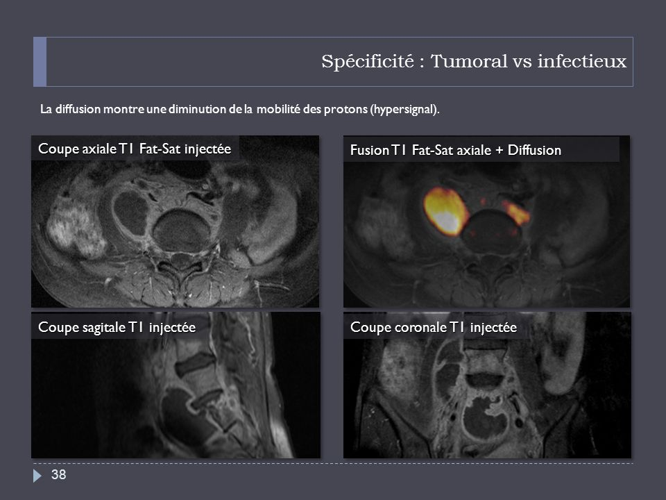 Spécificité : Tumoral vs infectieux