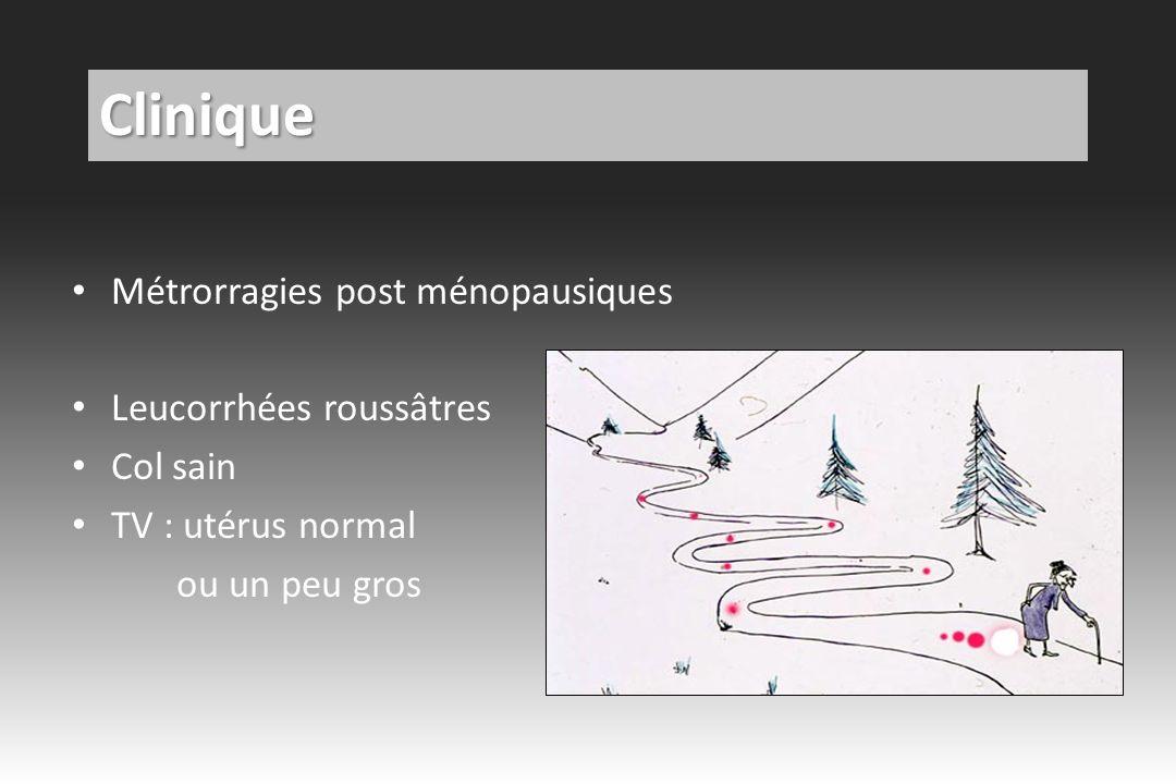Clinique Métrorragies post ménopausiques Leucorrhées roussâtres
