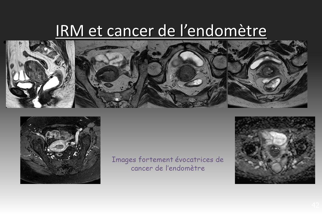 IRM et cancer de l'endomètre