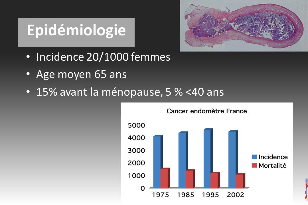 Epidémiologie Incidence 20/1000 femmes Age moyen 65 ans
