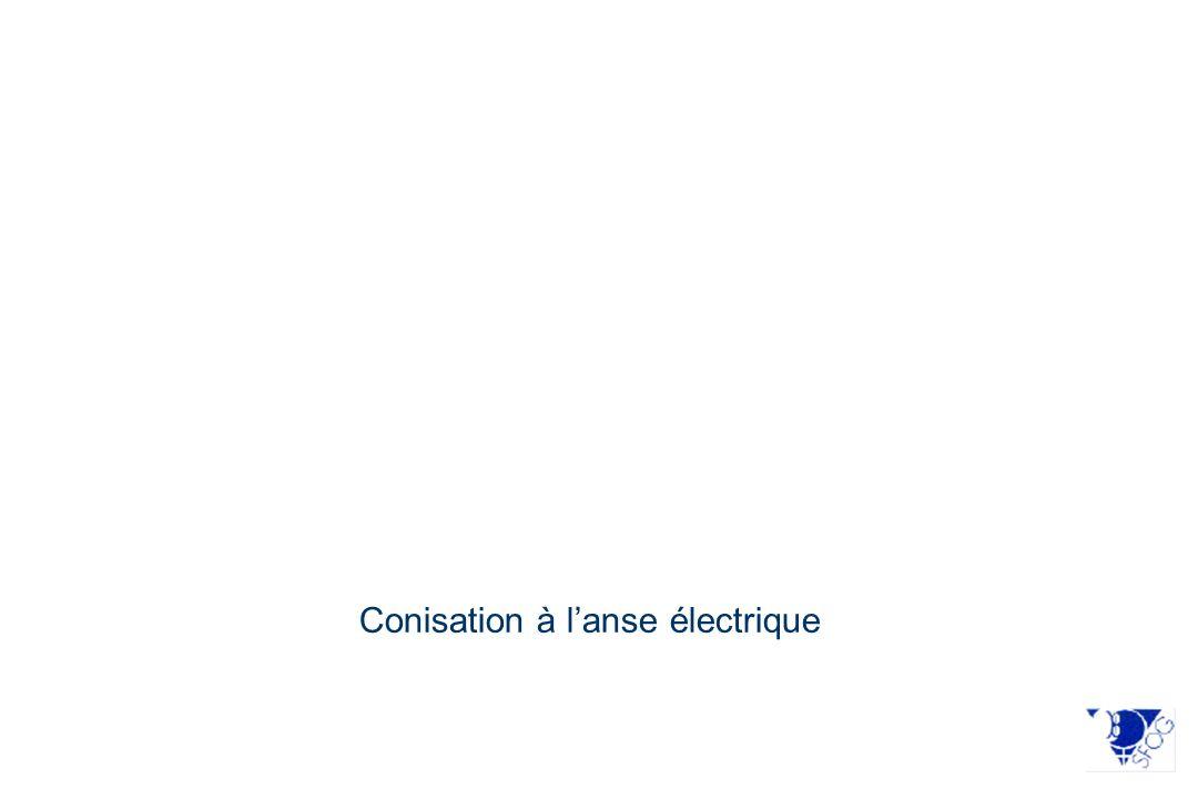 Conisation à l'anse électrique