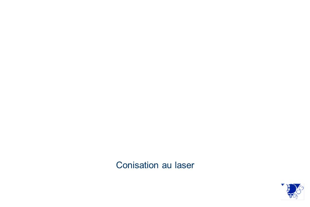 Conisation au laser