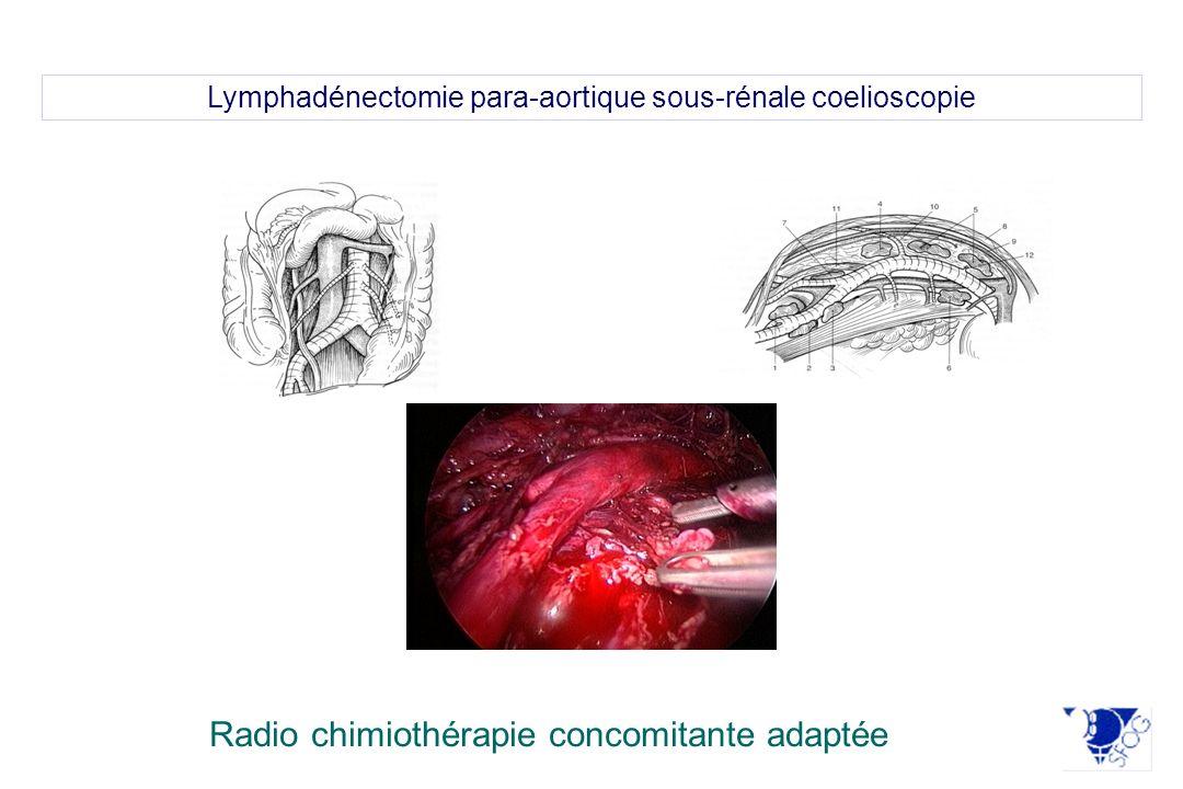Lymphadénectomie para-aortique sous-rénale coelioscopie