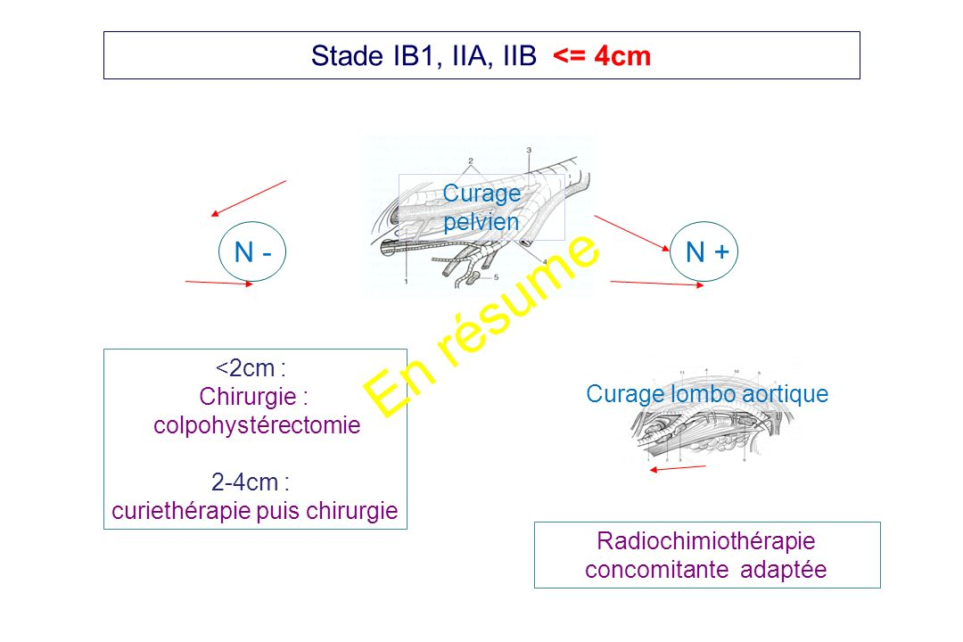 En résume Stade IB1, IIA, IIB <= 4cm N - N + Curage pelvien