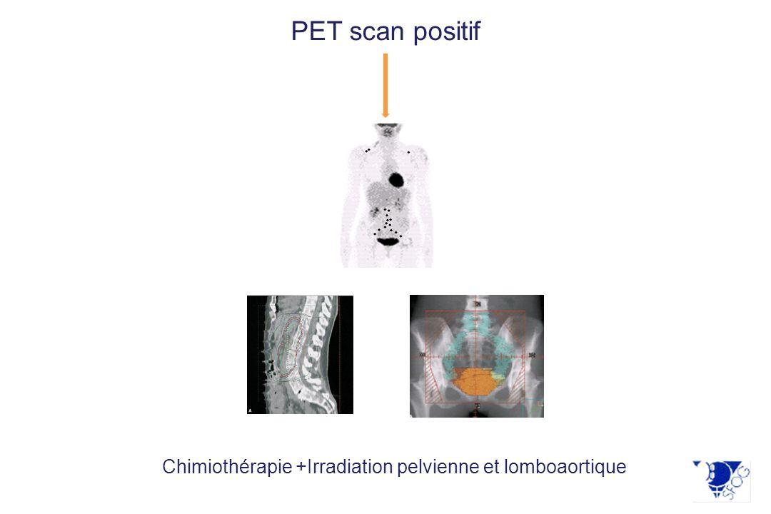 Chimiothérapie +Irradiation pelvienne et lomboaortique