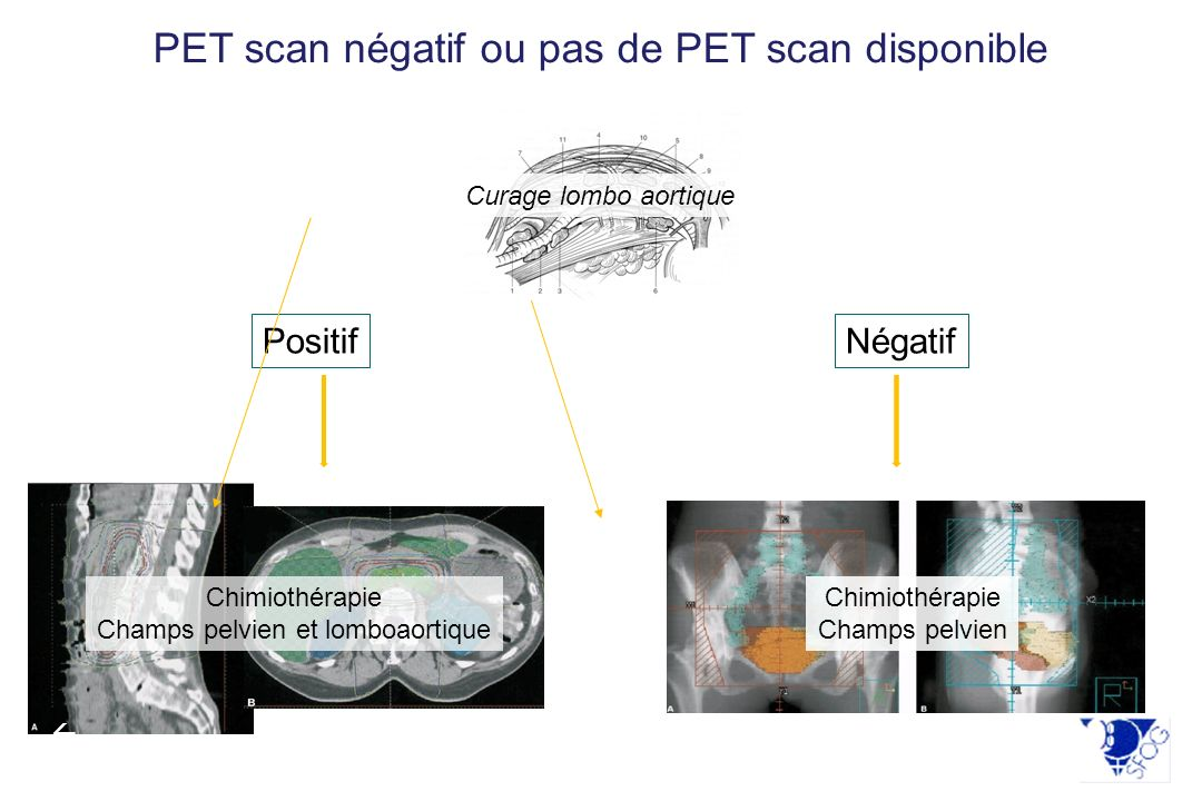 PET scan négatif ou pas de PET scan disponible
