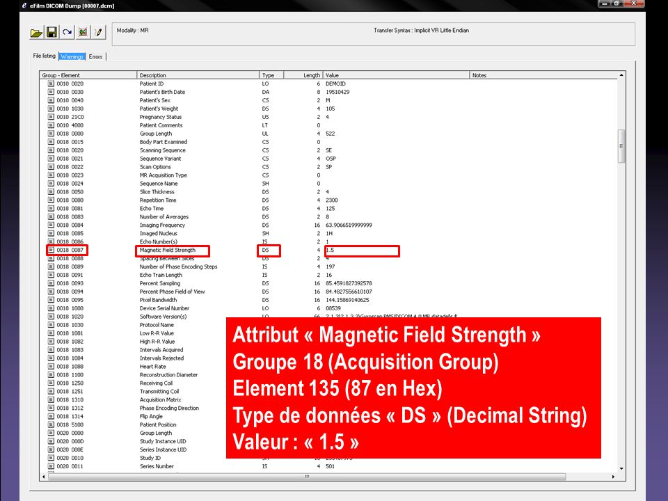 Attribut « Magnetic Field Strength »