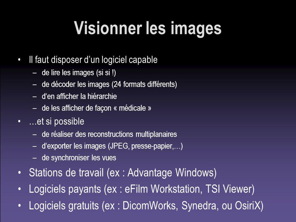 Visionner les images Stations de travail (ex : Advantage Windows)