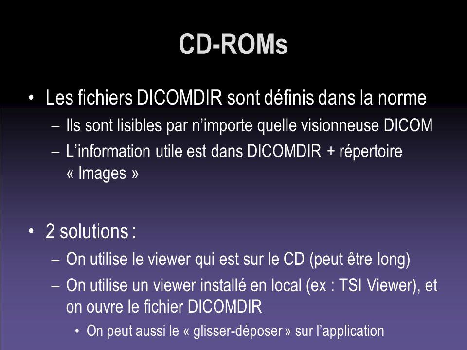 CD-ROMs Les fichiers DICOMDIR sont définis dans la norme 2 solutions :