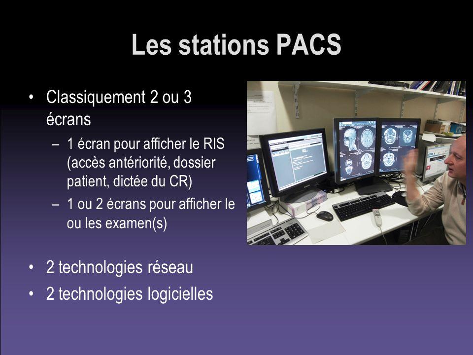 Les stations PACS Classiquement 2 ou 3 écrans 2 technologies réseau