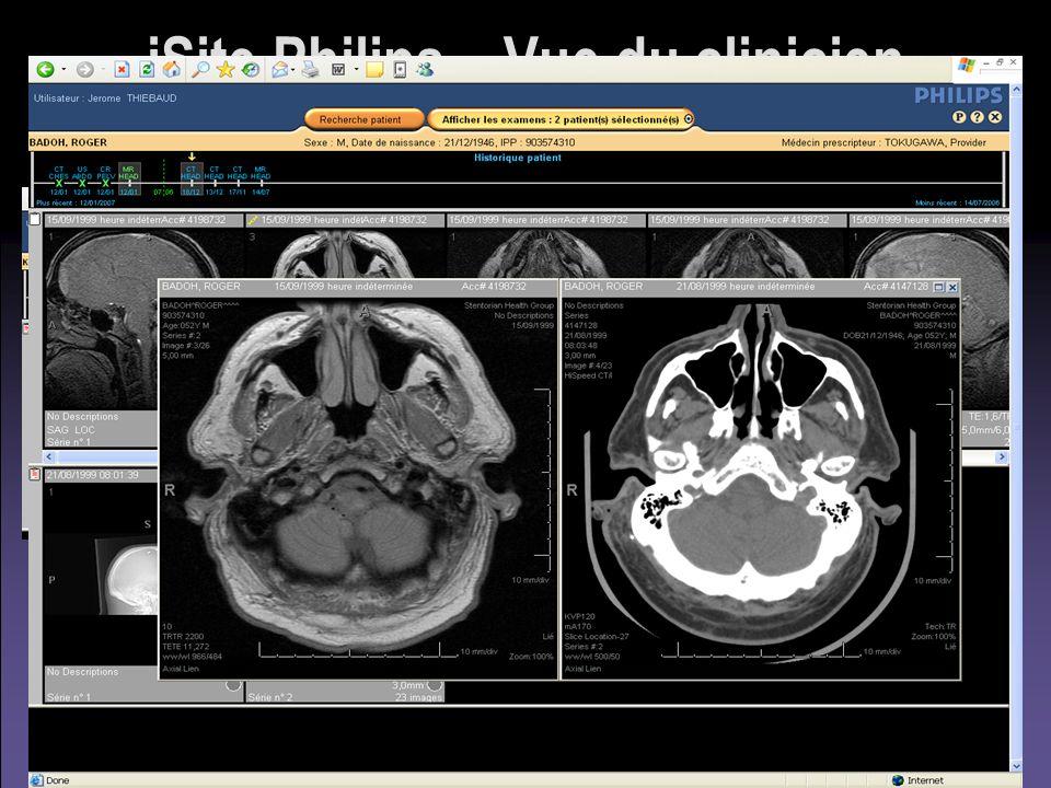 iSite Philips – Vue du clinicien Client « léger »