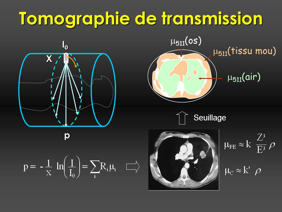 Tomographie de transmission
