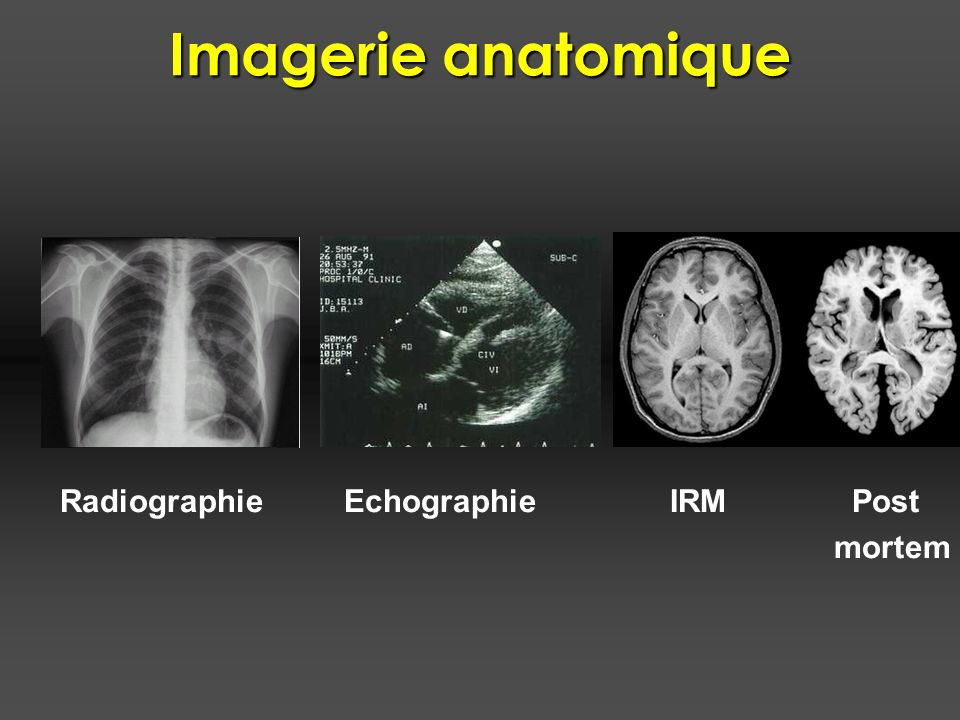 Imagerie anatomique Radiographie Echographie IRM Post mortem