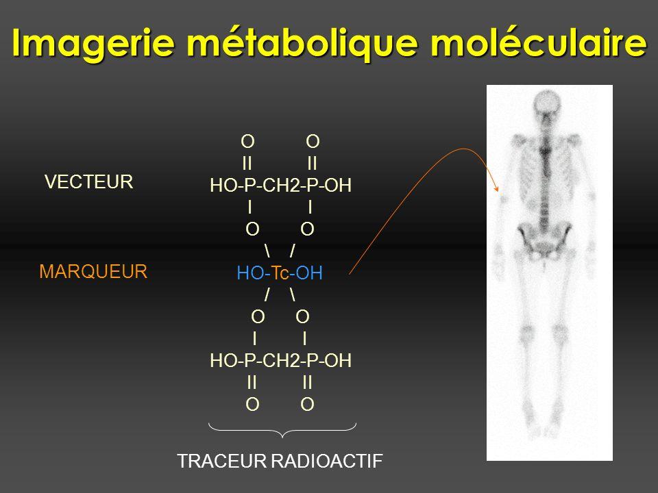 Imagerie métabolique moléculaire