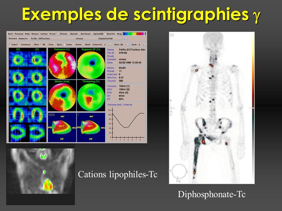 Exemples de scintigraphies g