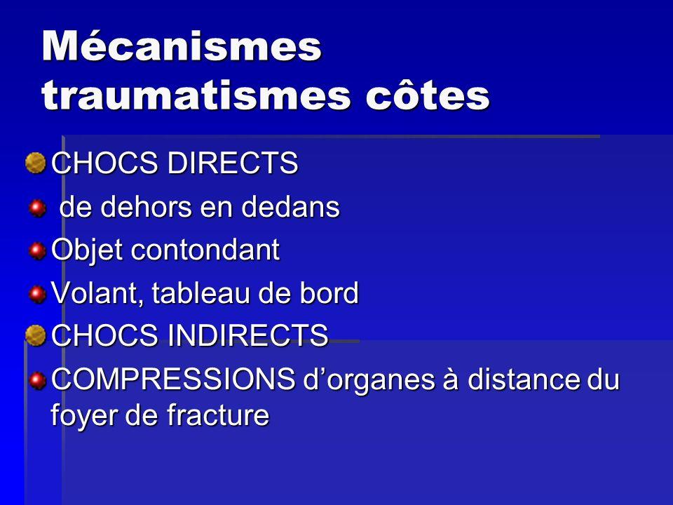 Mécanismes traumatismes côtes