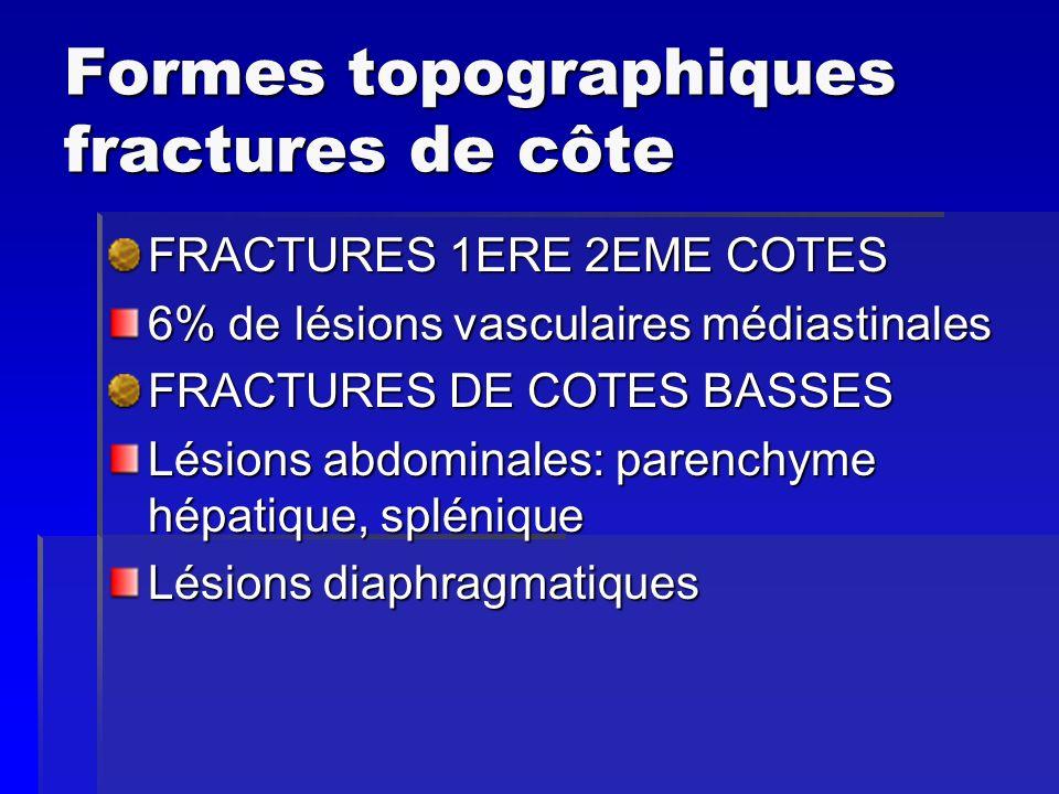 Formes topographiques fractures de côte