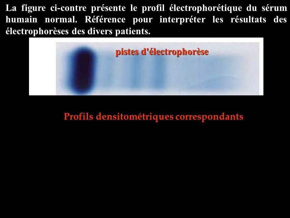 pistes d électrophorèse