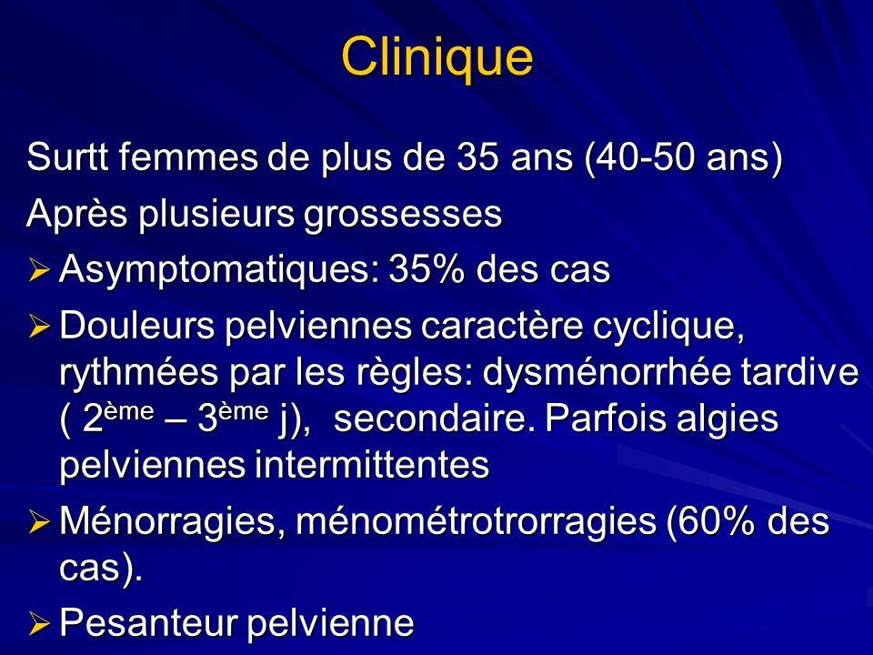 Clinique Surtt femmes de plus de 35 ans (40-50 ans)