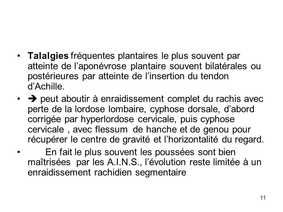 Talalgies fréquentes plantaires le plus souvent par atteinte de l'aponévrose plantaire souvent bilatérales ou postérieures par atteinte de l'insertion du tendon d'Achille.