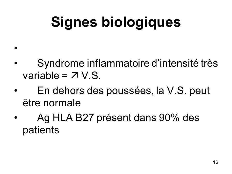 Signes biologiques Syndrome inflammatoire d'intensité très variable =  V.S. En dehors des poussées, la V.S. peut être normale.