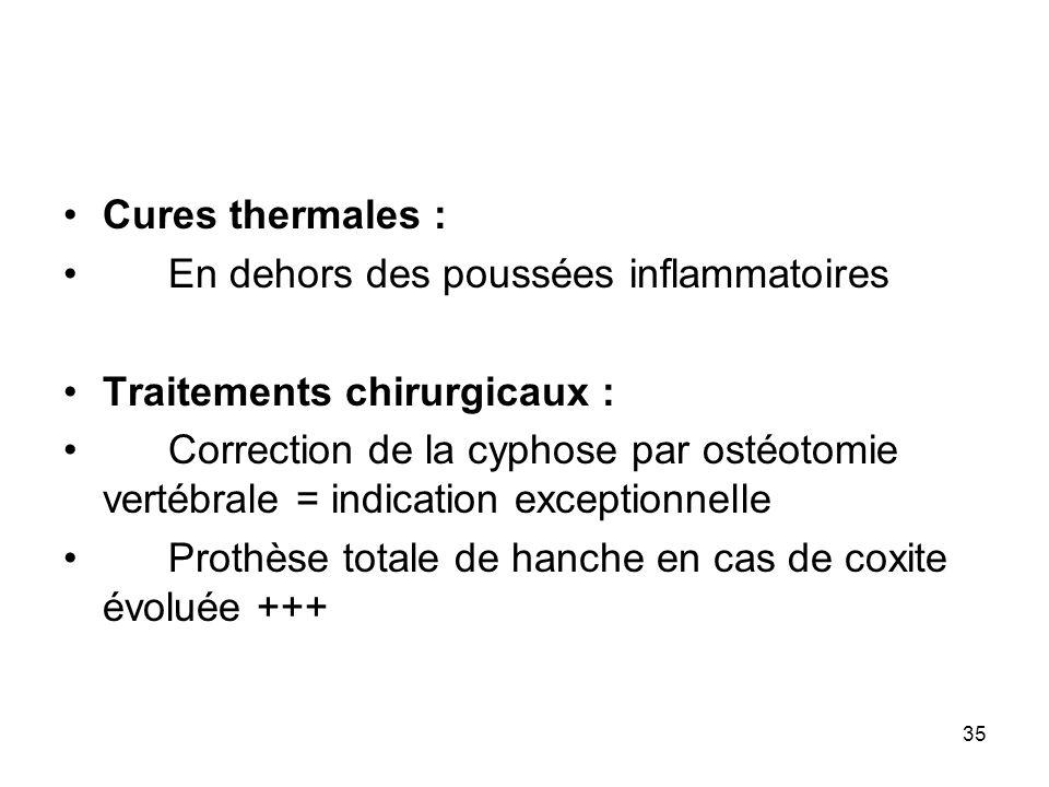 Cures thermales : En dehors des poussées inflammatoires. Traitements chirurgicaux :