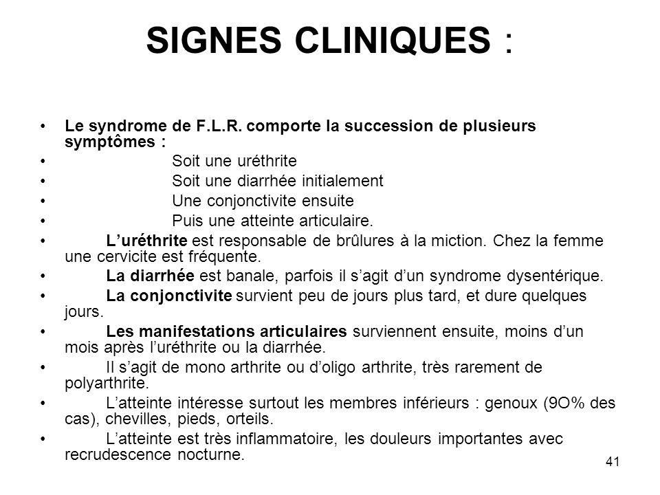SIGNES CLINIQUES : Le syndrome de F.L.R. comporte la succession de plusieurs symptômes : Soit une uréthrite.