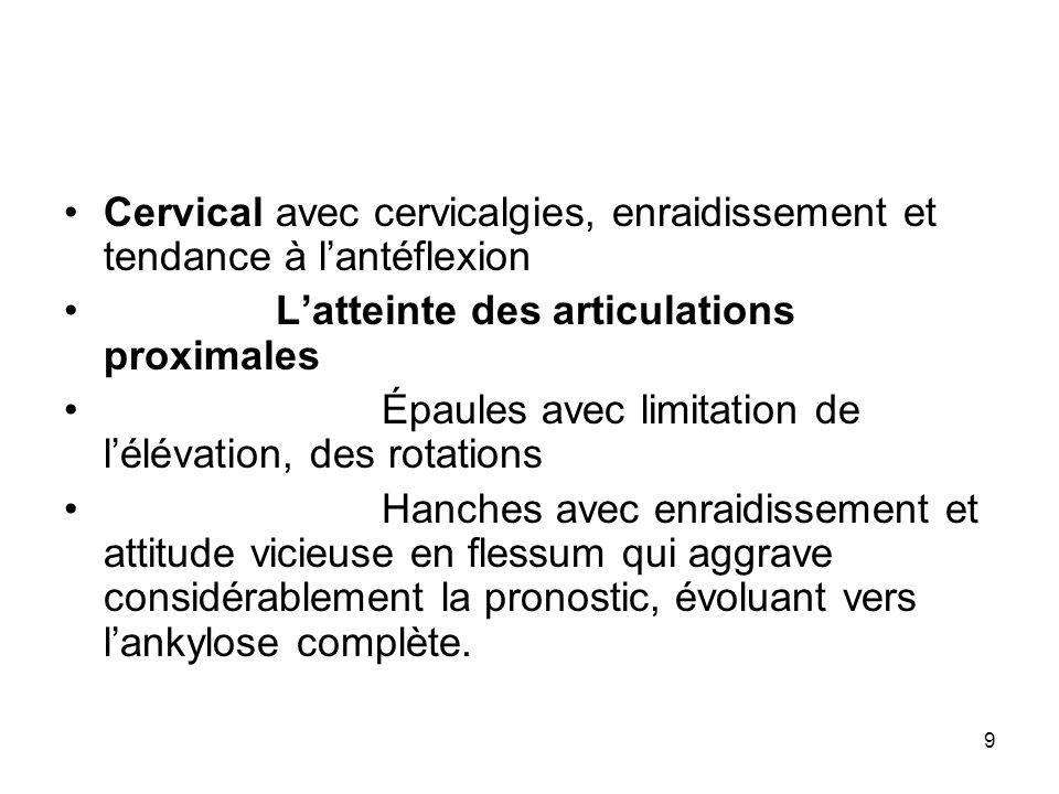 Cervical avec cervicalgies, enraidissement et tendance à l'antéflexion