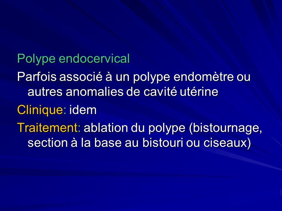 Polype endocervical Parfois associé à un polype endomètre ou autres anomalies de cavité utérine. Clinique: idem.