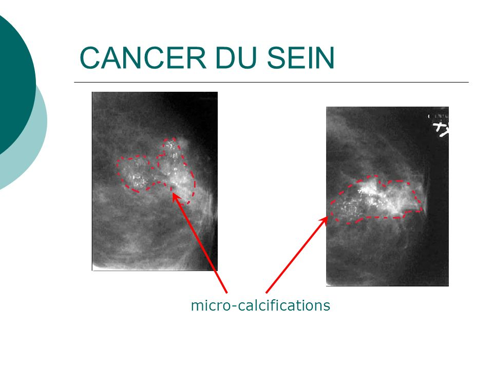 CANCER DU SEIN micro-calcifications