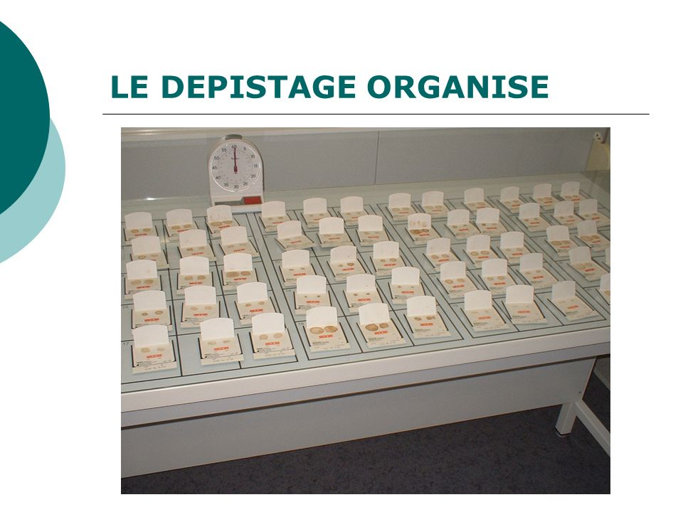 LE DEPISTAGE ORGANISE