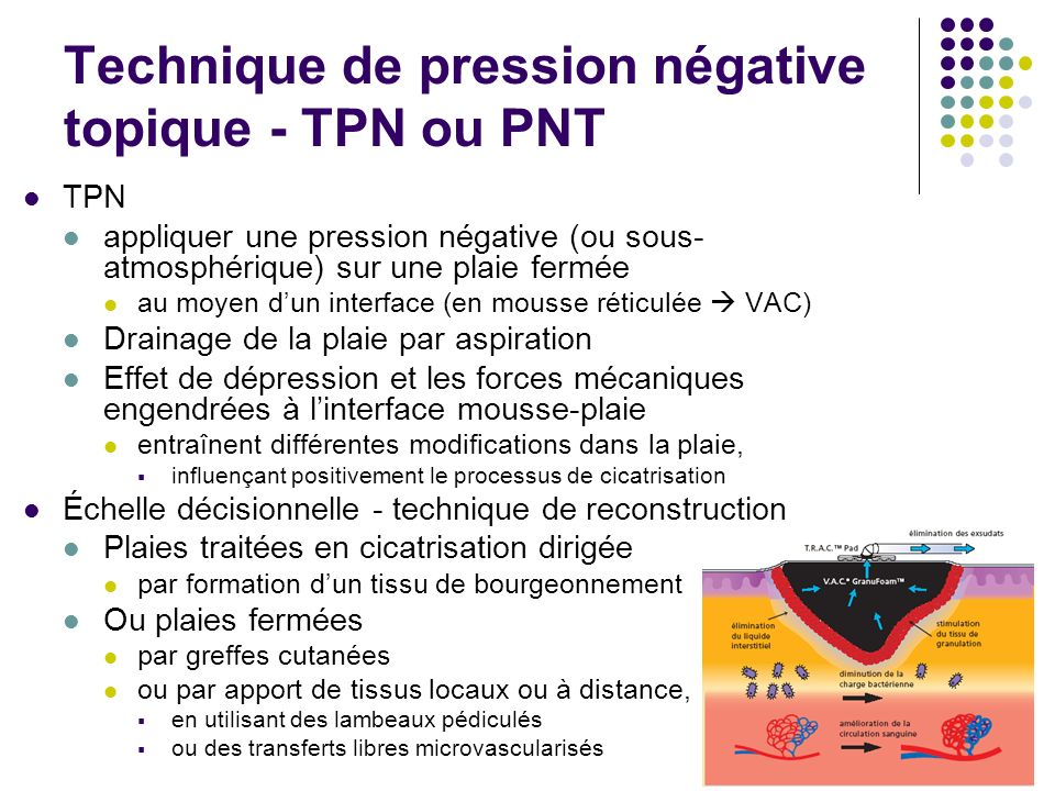 Technique de pression négative topique - TPN ou PNT