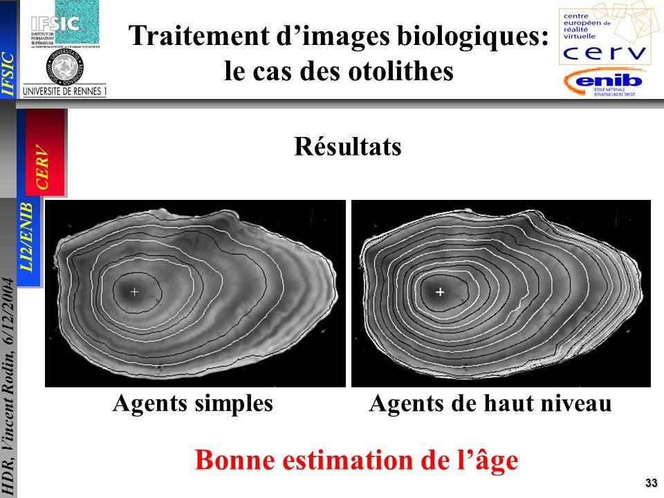 Traitement d'images biologiques: