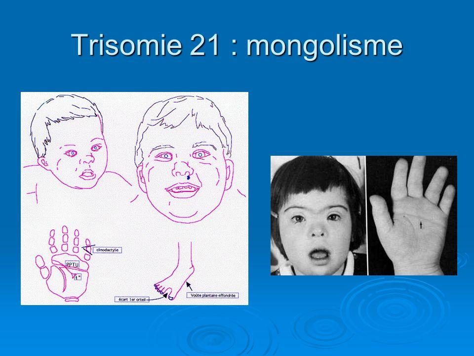 Trisomie 21 : mongolisme