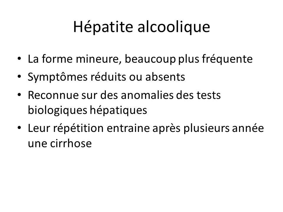 Hépatite alcoolique La forme mineure, beaucoup plus fréquente