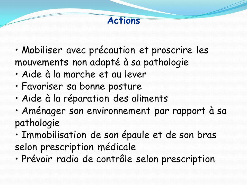 Actions Mobiliser avec précaution et proscrire les mouvements non adapté à sa pathologie. Aide à la marche et au lever.