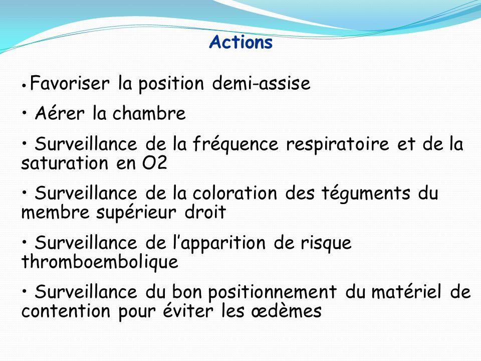 Surveillance de la fréquence respiratoire et de la saturation en O2
