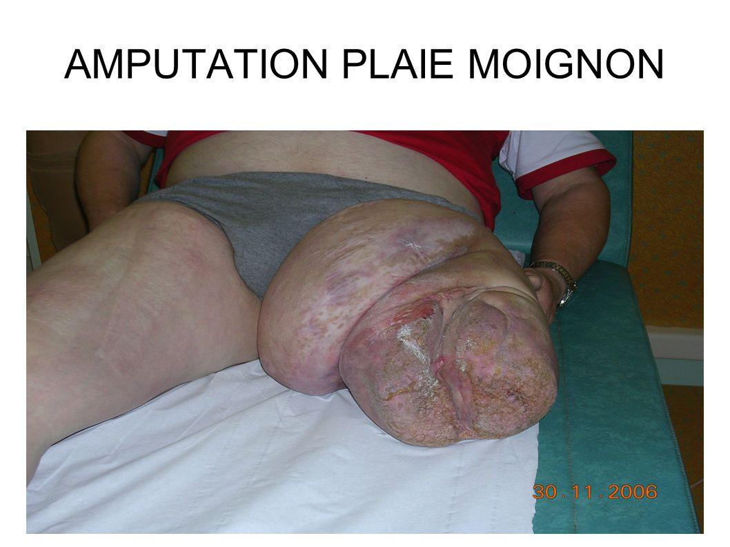 AMPUTATION PLAIE MOIGNON