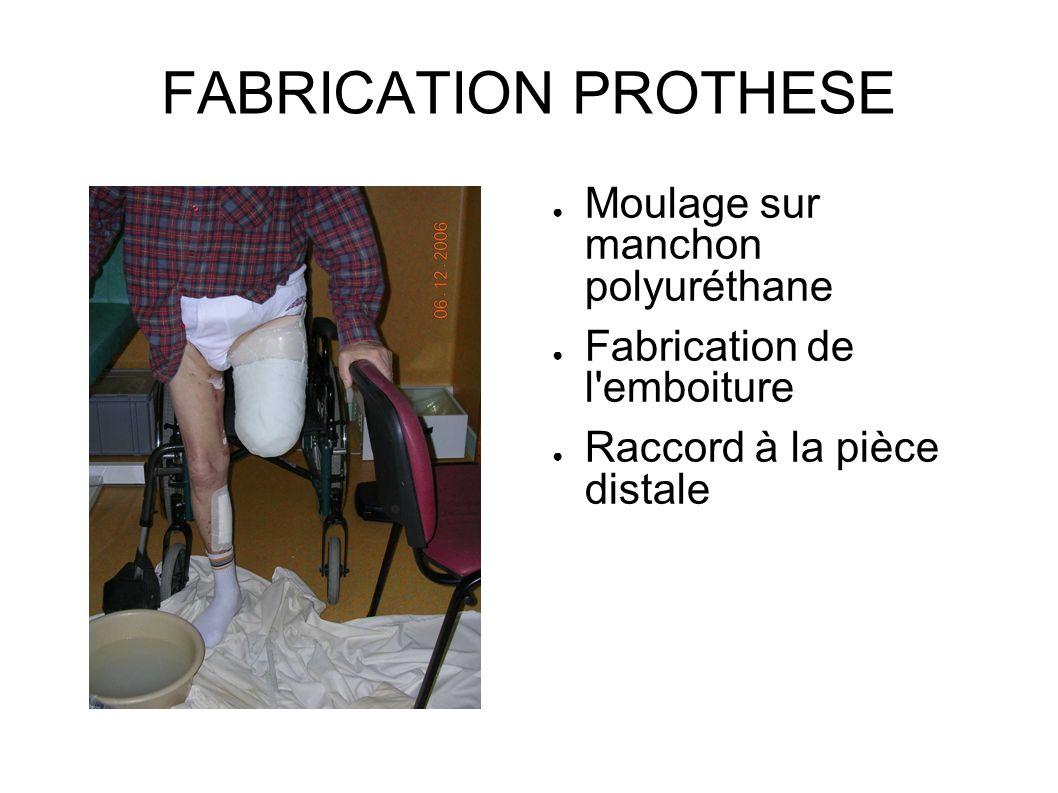 FABRICATION PROTHESE Moulage sur manchon polyuréthane