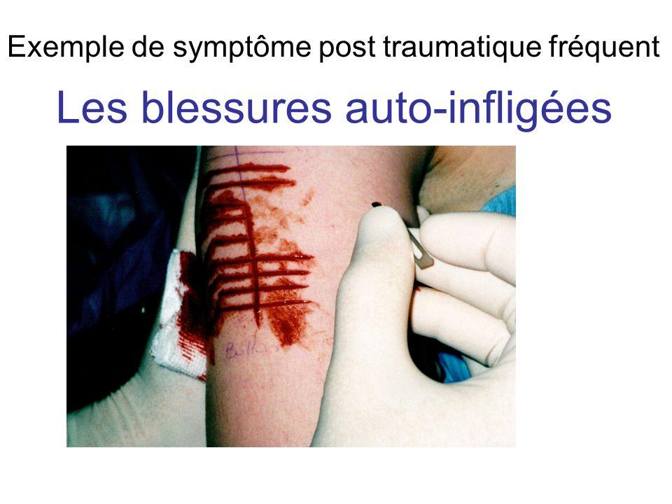 Les blessures auto-infligées