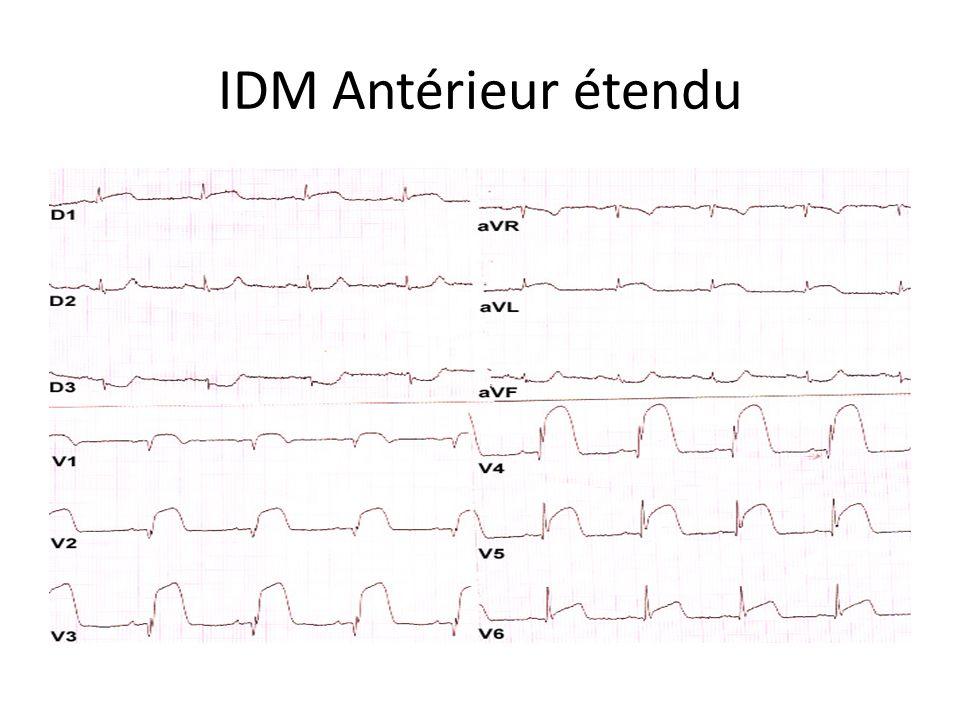 IDM Antérieur étendu