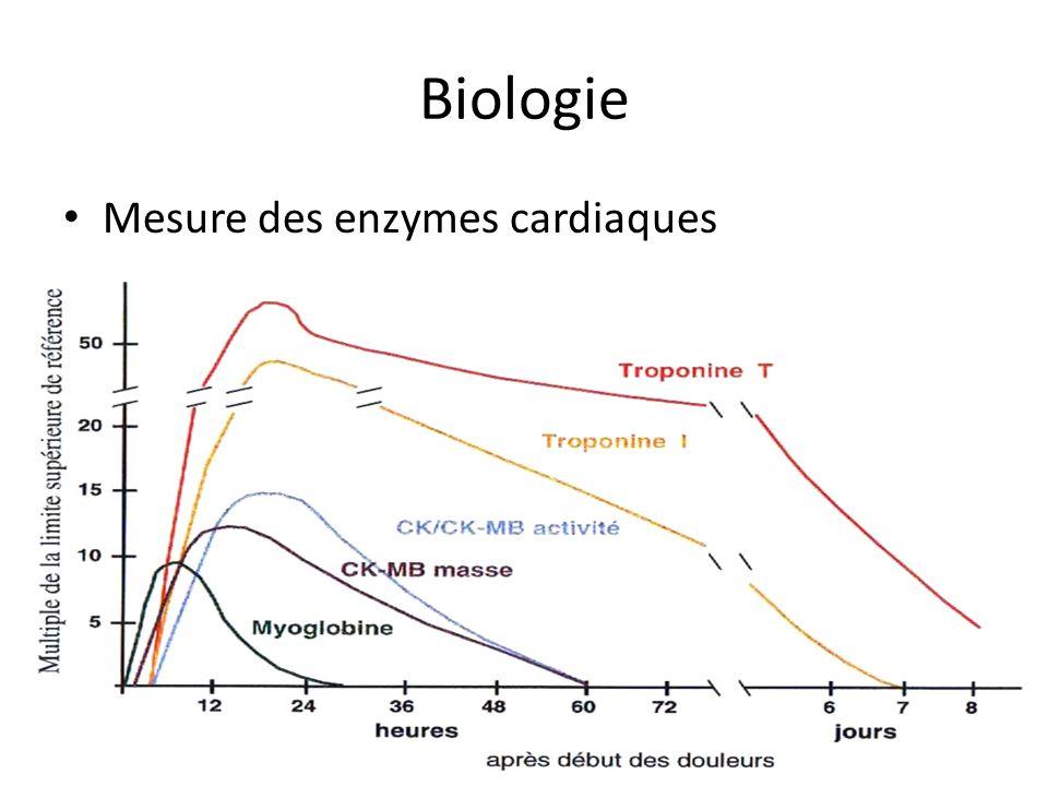 Biologie Mesure des enzymes cardiaques