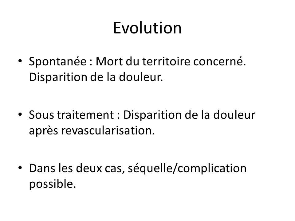 Evolution Spontanée : Mort du territoire concerné. Disparition de la douleur. Sous traitement : Disparition de la douleur après revascularisation.