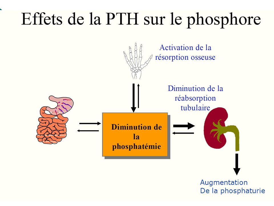 Augmentation De la phosphaturie