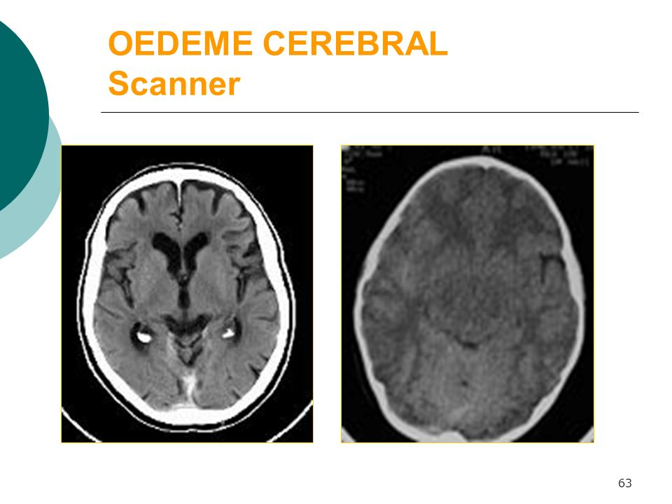 OEDEME CEREBRAL Scanner